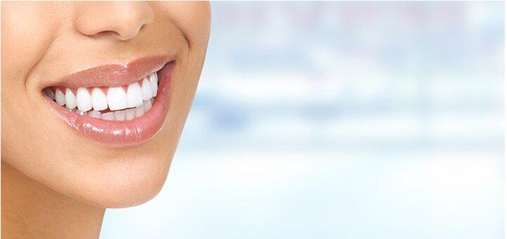 Скидка 40% на косметическое отбеливание зубов в студии  «Smile Studio»