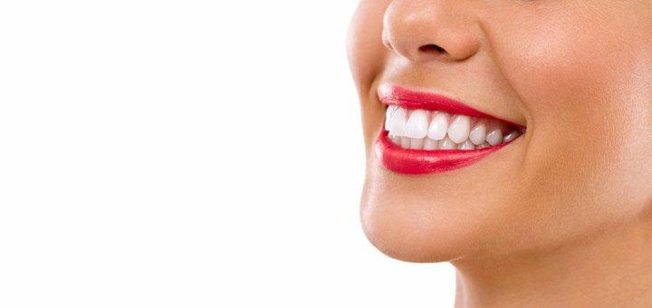 Скидка 55% на лазерное отбеливание зубов «Magic Smile» в стоматологии на Кириловской