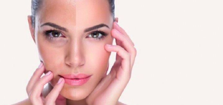 Скидка 15% на гиалуроновый пилинг для лица от «Vesna»